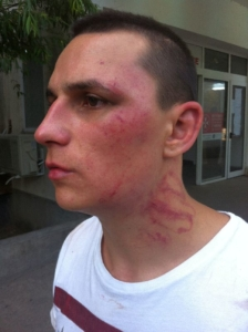 Report on the case of Florin Micu, beaten by three policemen of Station 25 in Bucharest