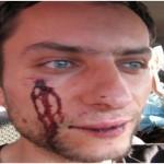 România, condamnată la CEDO pentru încă un cetățean bătut de poliție